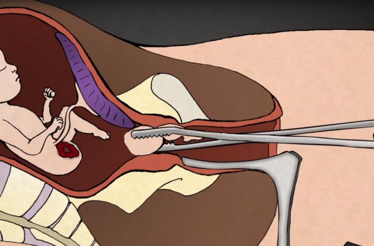 aborto-demonstracao