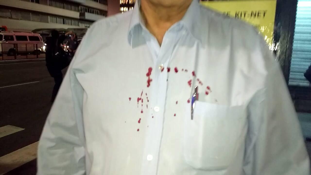 Homem agredido pela turba muçulmana de Hasan Zarif.