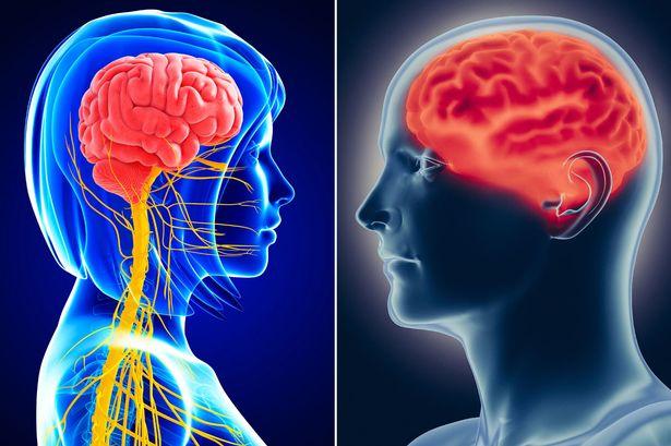 cerebro - masculino - femino